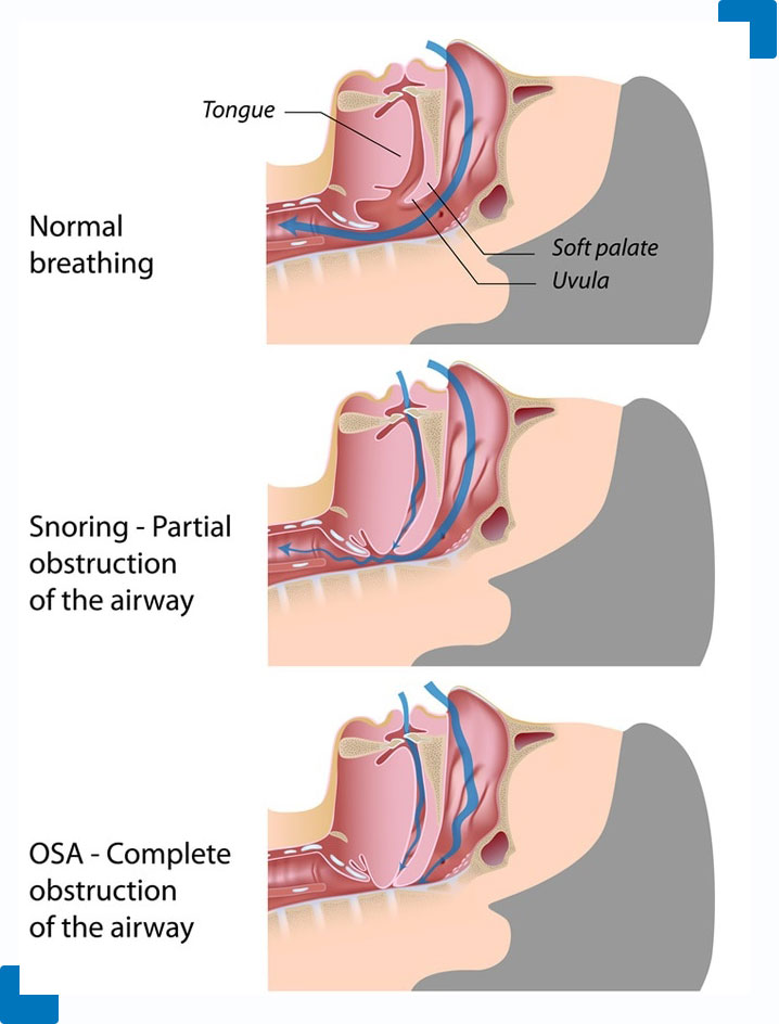sleep apnea illustration